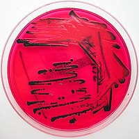 Salmonella species growing on XLD agar - Showing H2S production.jpg