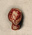 Testicle; specimen removed from man with syphilis, 1858 Wellcome V0010048.jpg