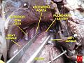 Thoracic cavity of foetus - great vessels 2.JPG