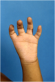 Thumb hypoplasia type 5.png