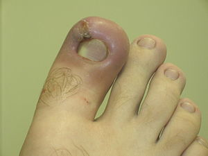 Inflammation - Infected ingrown toenail showing the characteristic redness and swelling associated with acute inflammation