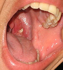 Tonsillolith in mouth.jpg