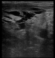 Ultrasound Scan ND 115254 1159140 cr.png