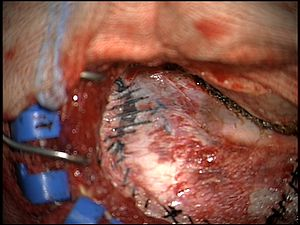 Surgical sealant film - Use of a surgical sealant film to reinforce and seal gaps in the dura mater.