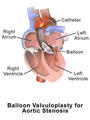 Valvuloplasty Aortic.png