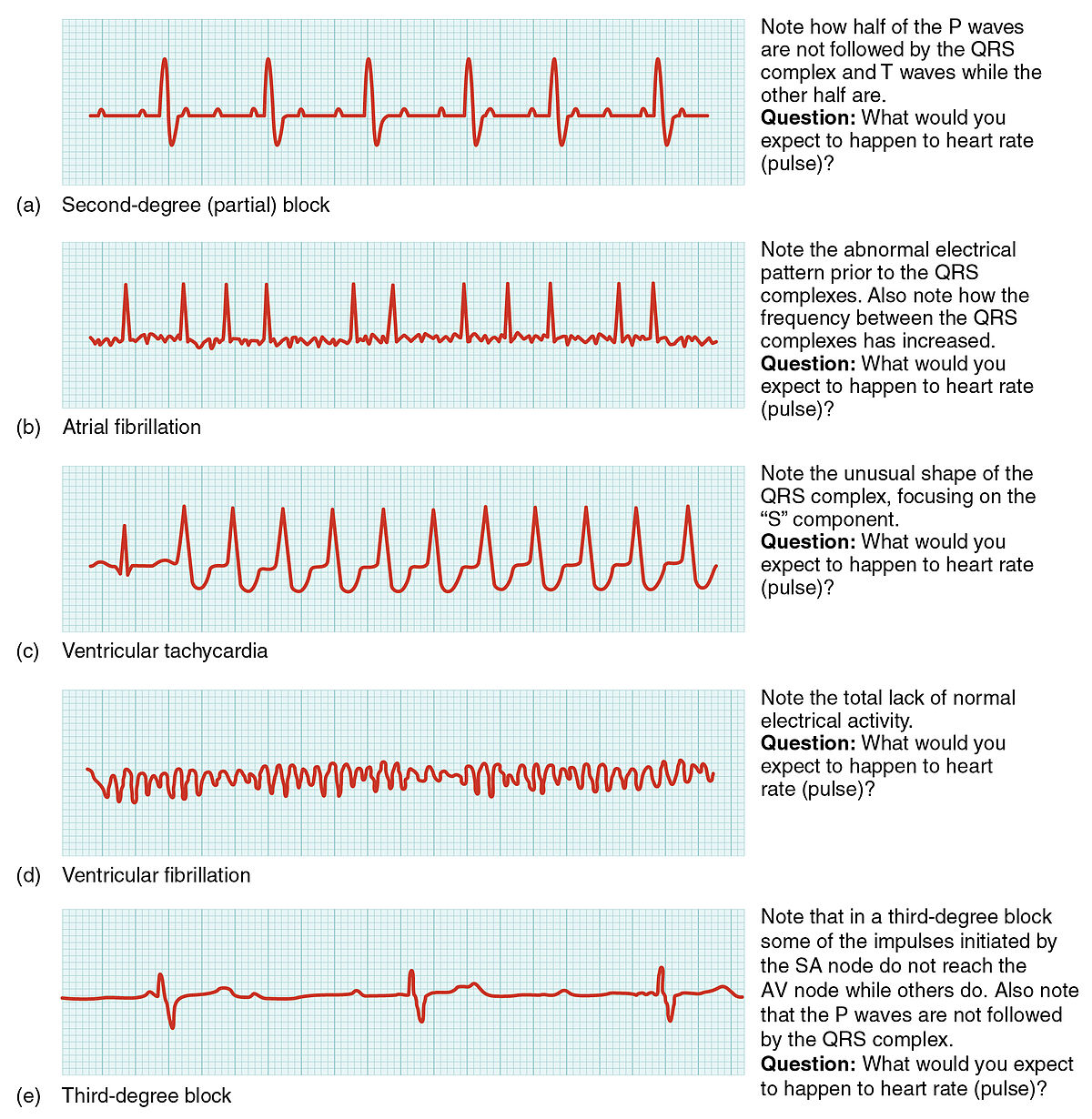 Cardiac arrhythmia - Simple English Wikipedia, the free ...