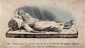 A dead victim of cholera at Sunderland in 1832. Coloured lit Wellcome V0010484.jpg