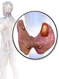 Parathyroid adenoma Human disease