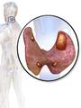Blausen 0533 Parathyroid adenoma.png