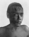 Boyscarred forehead as a treatment for epilepsy Wellcome M0005281.jpg