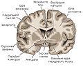 Brain-4a.jpg