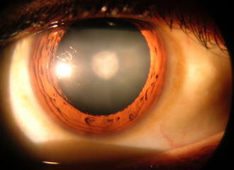 Anterior segment of eyeball - Human eye Anterior Segment - Magnified view seen on examination with a slit lamp under diffuse illumination showing conjunctiva overlying the white sclera, transparent cornea, pharmacologically dilated pupil and cataract