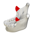 Coronoid process of mandible - close up - lateral view2.png