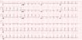 De-Ptadepressieecg (CardioNetworks ECGpedia).png