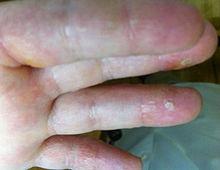 Dermatitis en manos y pies tratamiento