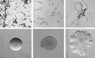 Erysipelothrix - Cellular and colonial morphology of Erysipelothrix rhusiopathiae