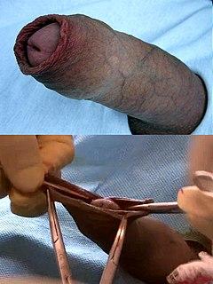Dorsal slit single incision along the upper length of the foreskin