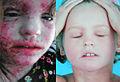 Eczema (14144191363).jpg