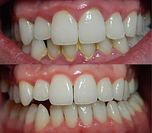 Dental plaque - Top: typical presentation of gingivitis. Bottom: healthy gingiva.