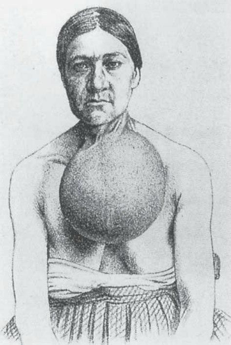 Goiter Kocher 1874.jpg