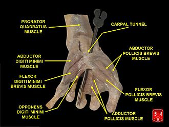 Flexor pollicis brevis muscle - Image: Hand dissection 9