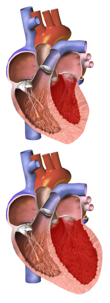 ICD-10 Coding/Diseases of the Circulatory System - Wikiversity