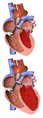 Heart Normal vs. Enlarged.png