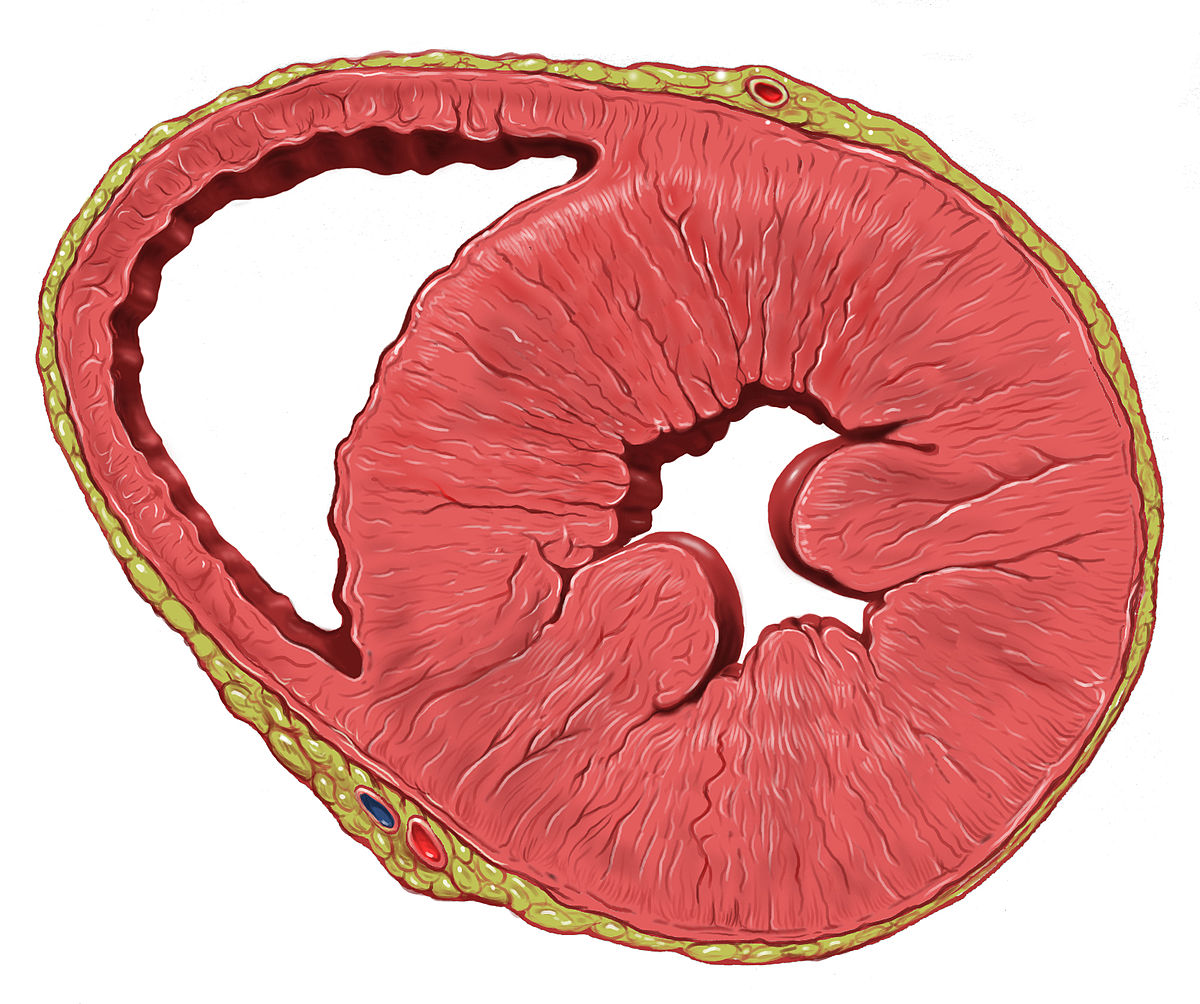 Left Ventricular Hypertrophy Wikipedia