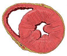 Heart left ventricular hypertrophy sa.jpg