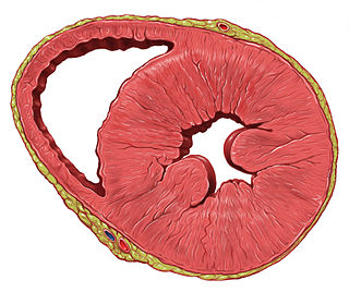 Left ventricular hypertrophy Medical condition