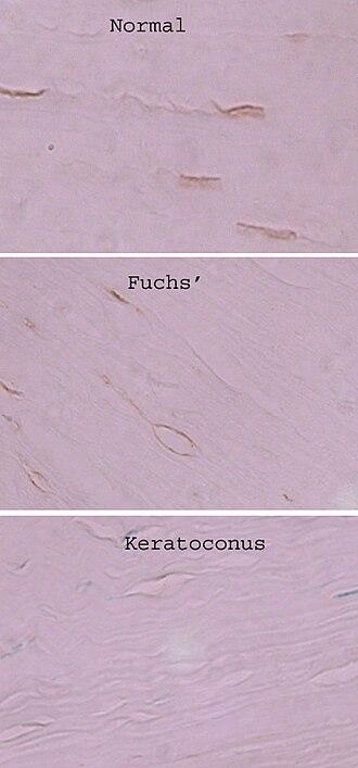 Corneal keratocyte - Image: Keratoconus keratocytes alcohol dehydrogenase 3