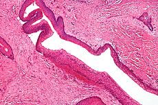 Keratocystic odontogenic tumour - intermed mag.jpg