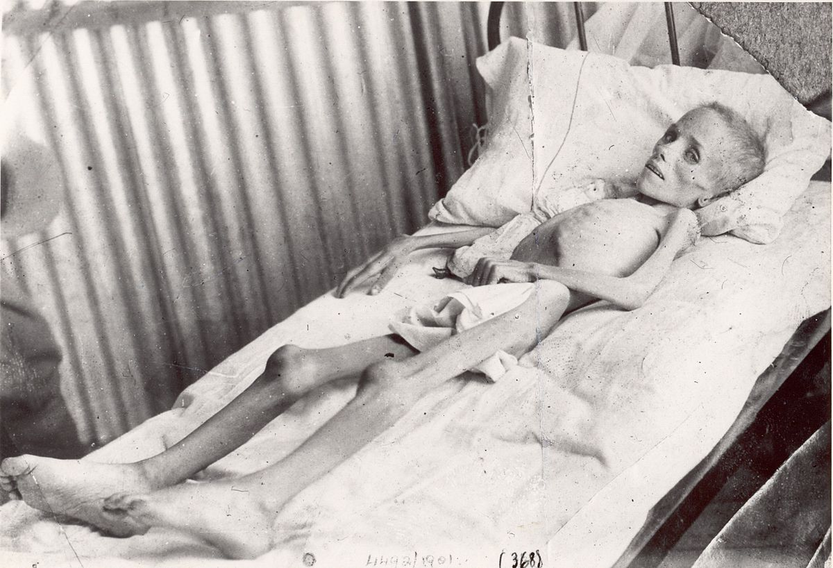 Resultado de imagem para febre tifóide boeres