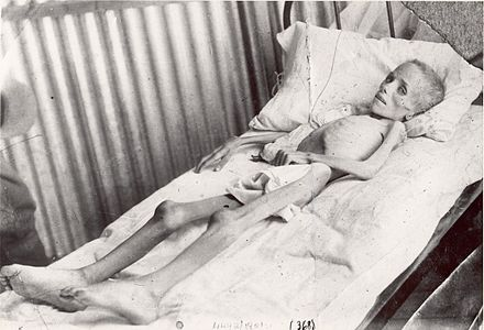 Lizzie van Zyl, a Boer child in a British concentration camp LizzieVanZyl.jpg
