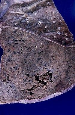 Lobar pneumonia with abscess (3729951501).jpg