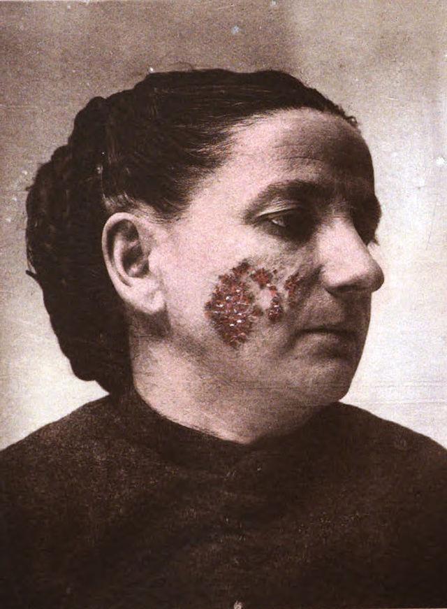 Lupus vulgaris - Wikiwand