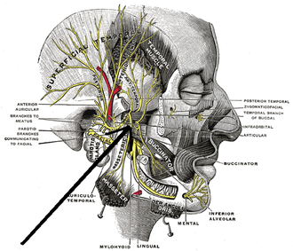 Medial pterygoid nerve - Mandibular division of the trigeminus nerve. (Internal pterygoid nerve visible but not labeled.)