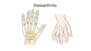 Osteoarthritis of hands