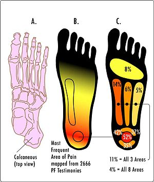 plantar fasciitis symptoms heel