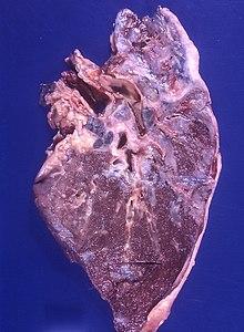 doenças femininas ginecologicas