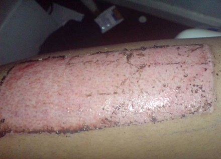 Split skin graft donor site 8 days after the skin was taken Skin graft donor site.jpg