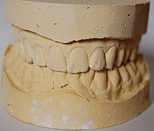 Dental impression - Wikipedia