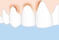 Zahnfleischentzuendung.png