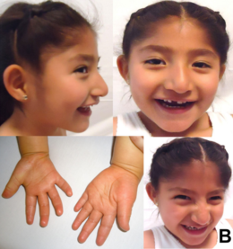 Description de l'image 5-year-old Mexican girl with Angelman syndrome (cropped).png.