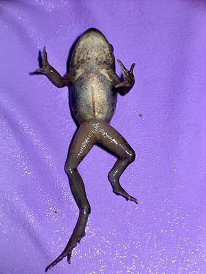 Fibular hemimelia - Wikipedia
