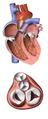 Blausen 0469 HeartValves.png