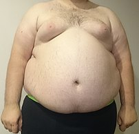 An obese human male.