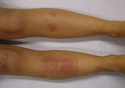 Erythema nodosum in a person who had recently had streptococcal pharyngitis