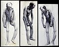Friern Hospital, London; an emaciated old man, naked, with d Wellcome V0029640.jpg