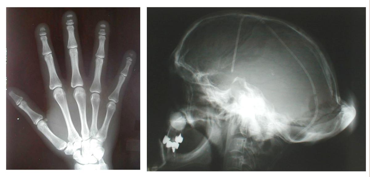 subluxarea articulațiilor genunchiului umflarea pe articulația piciorului